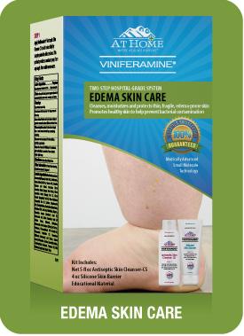Edema Skin Care